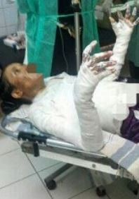 Nazeera receiving hospital treatment after the fire attack. (Photo: Sun News via Saeed)