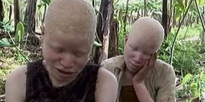 Albino african tribe girls what result?