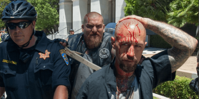 A victim from the violence that ensued after the Sacramento rally on Sunday holds his bleeding head as he is escorted by a police officer. (Photo: Twitter)